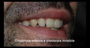 5-ortodonzia